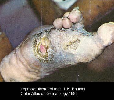 ulcerated foot